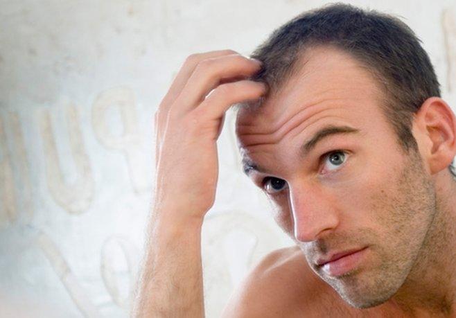 Saç Dökülmesine Kanlı Çözüm